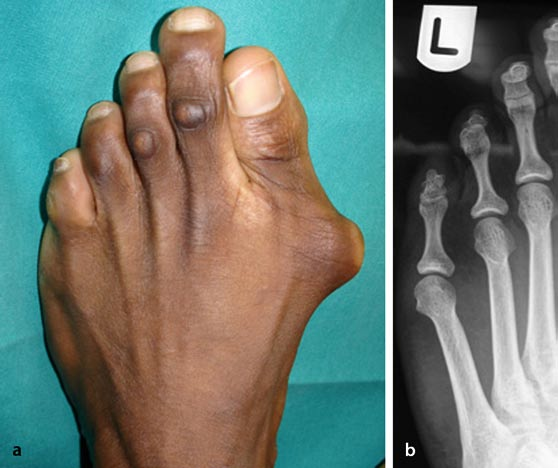 What Can Cause a Foot Callus