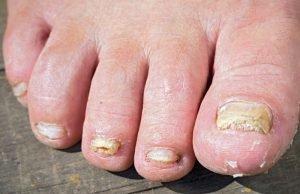 foot toenail fungus