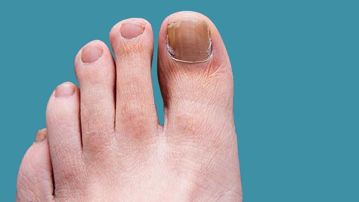 stamp out toenail fungus